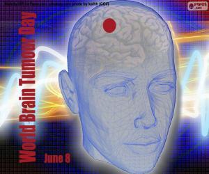 Rompicapo di Giornata internazionale dei tumori cerebrali