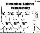 Giornata internazionale di sensibilizzazione su albinismo